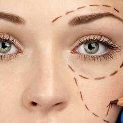 Cirugía de párpados