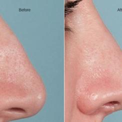 Cuidados después de una cirugía plástica de nariz